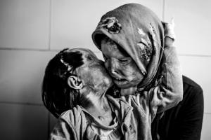Мама з дитиною, яких облив кислотою чоловік та батько