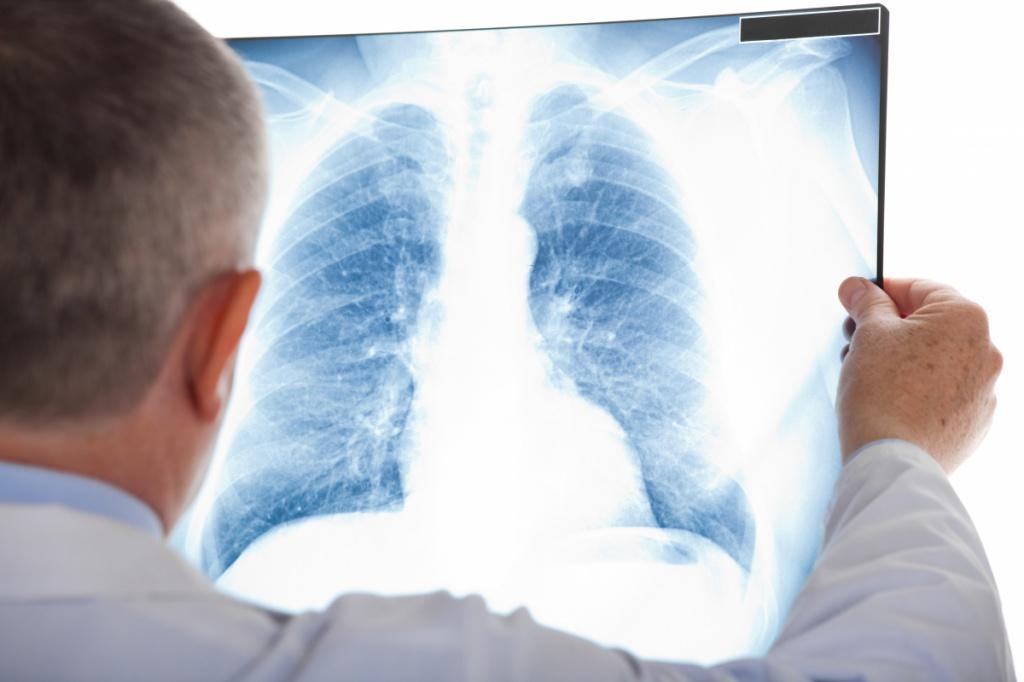 У Бучацькому районі виявили туберкульоз
