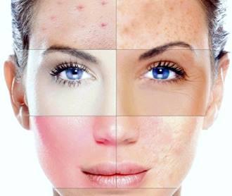 Як визначити тип шкіри?